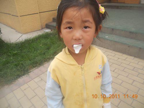 儿童牙齿涂氟价格