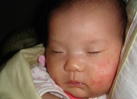 夏季婴儿湿疹九大注意事项